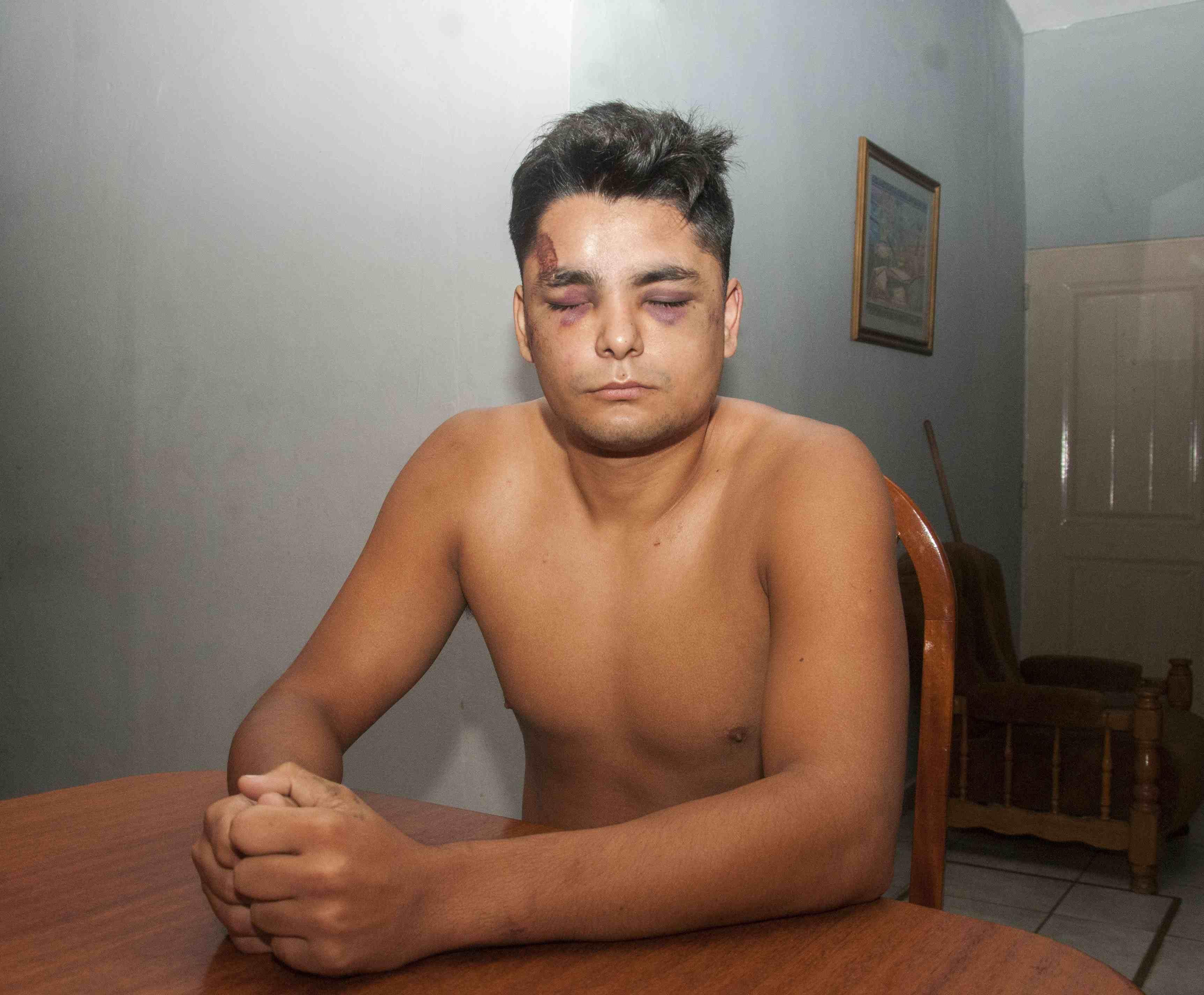 Claudio Torres Brizuela fue salvajemente golpeado por la policía