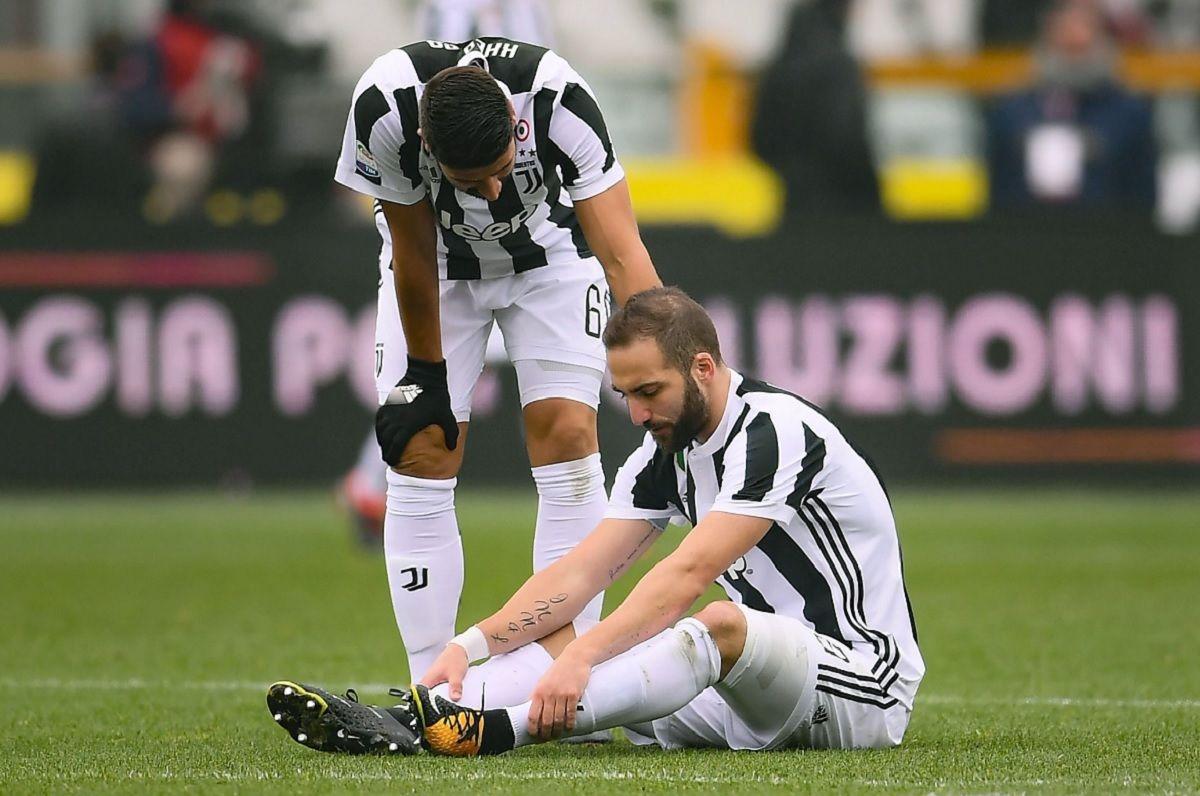 Gonzalo Higuaín se fue lesionado en el derby de Turín.