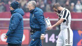 Un respiro para Sampaoli: la lesión de Higuaín fue un esguince de tobillo