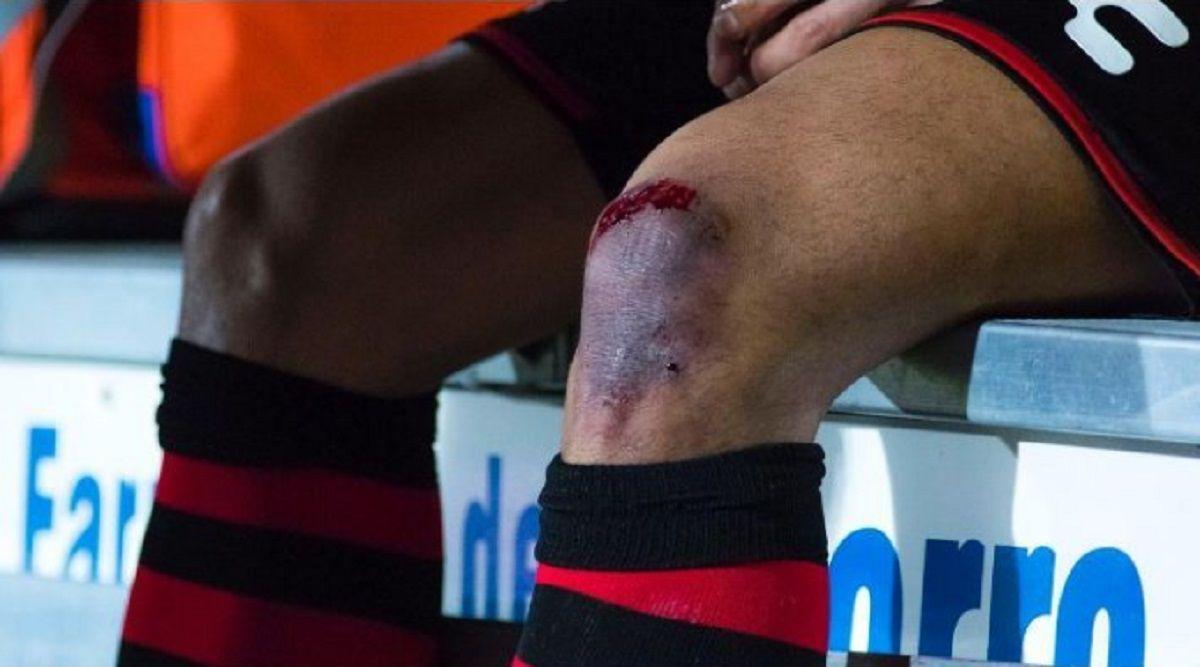 VIDEO: La impactante lesión de Gustavo Bou que lo sacó de la cancha