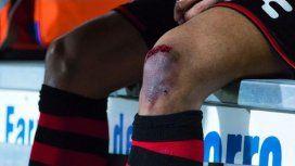 La impactante lesión de Bou que lo sacó de la cancha