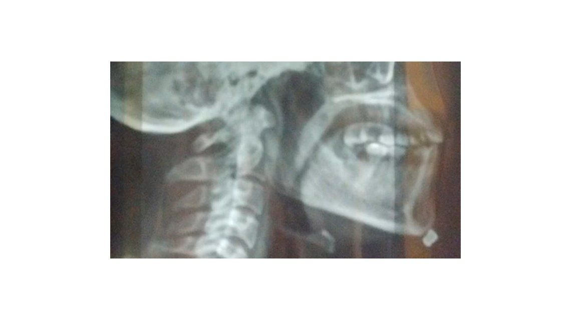 Un tirador suelto en el Parque Chacabuco: hirió a dos músicos