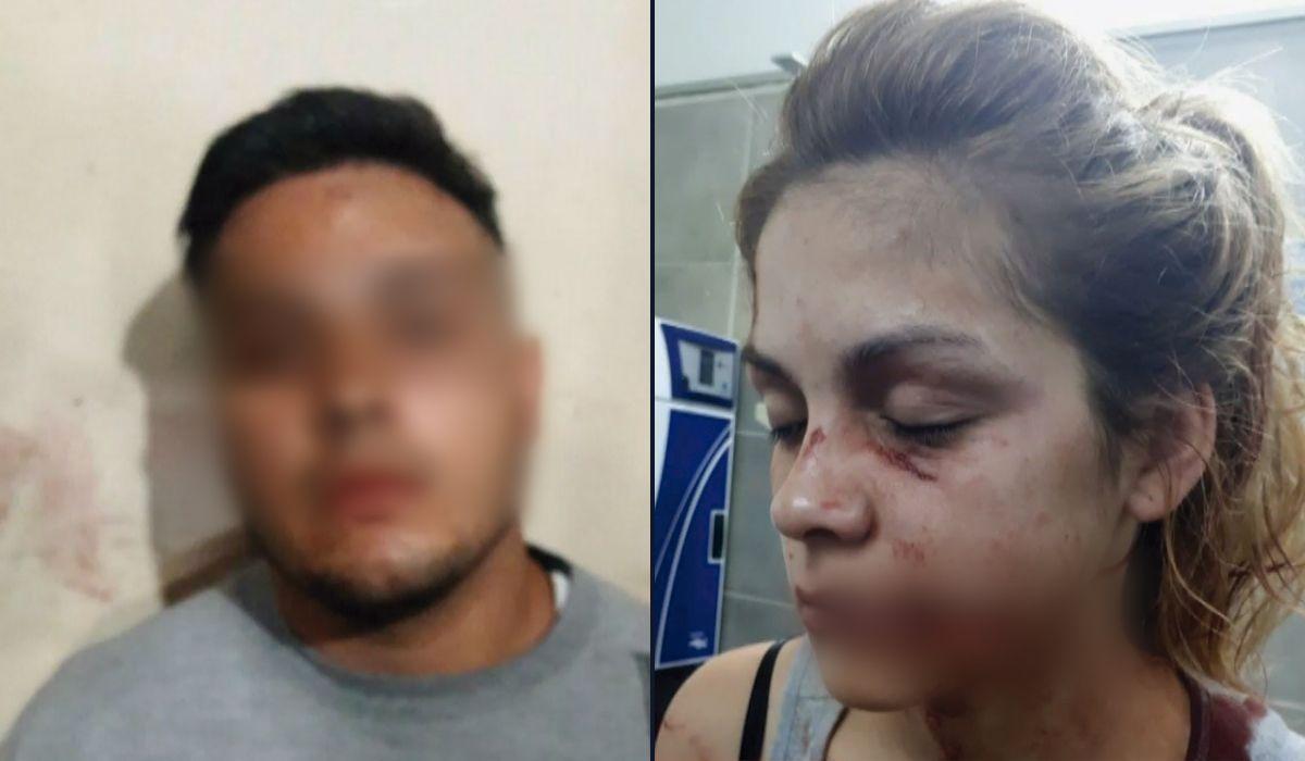 Lomas de Zamora: atacó a su novia y le cortó la cara con una botella