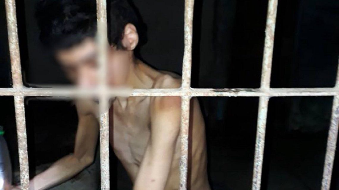 Imagen desgarradora: un joven discapacitado vive encerrado y sin comida en Corrientes