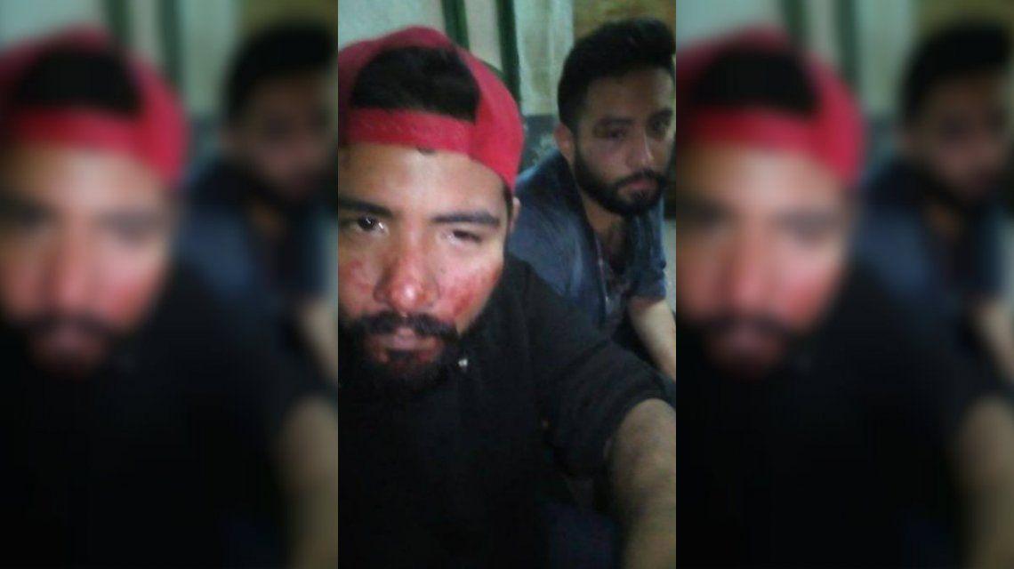 Ariel y Matías fueron agredidos brutalmente cerca de la estación de trenes de Quilmes