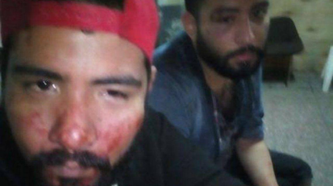 El ataque fue denunciado públicamente en Facebook por una amiga de la pareja