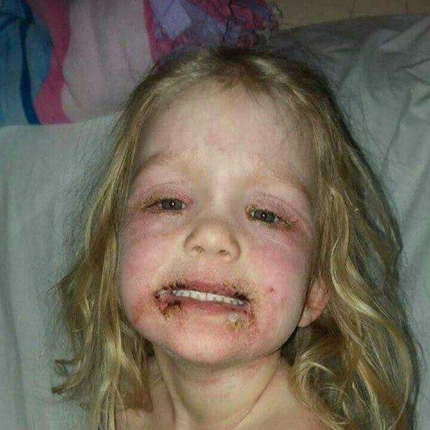 Una nena sufrió una reacción alérgica por el maquillaje