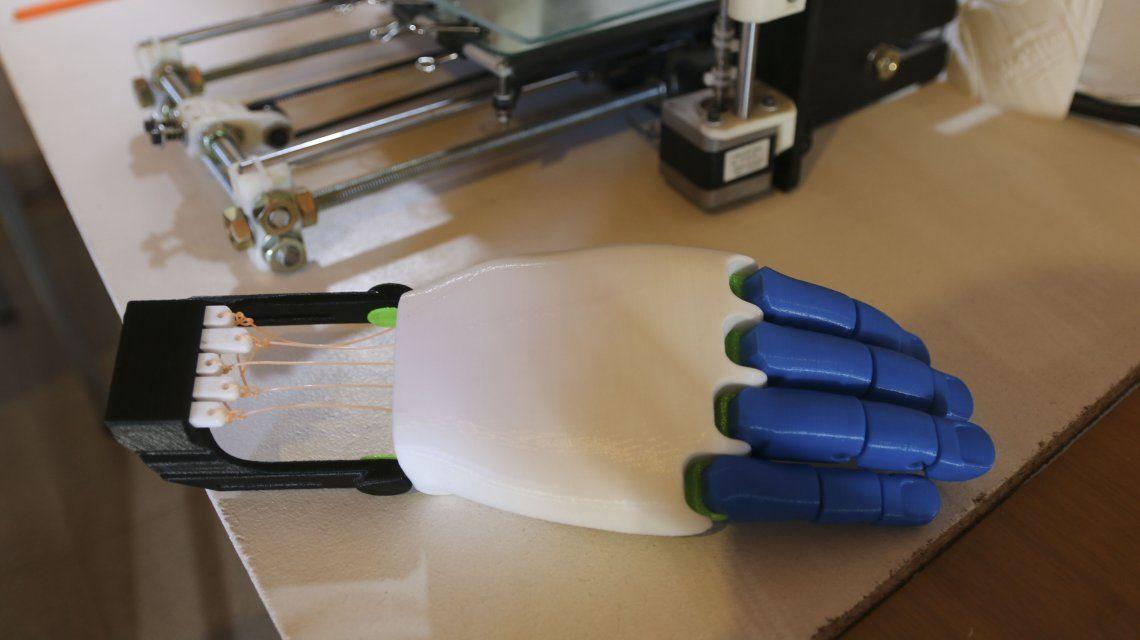 ¡Ejemplo solidario! Desarrolla prótesis de manos en impresoras 3D y las ofrece gratis por redes sociales