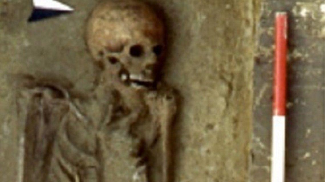 Encuentran los restos más antiguos de un hombre que usaba una prótesis