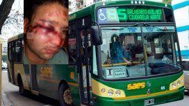 Otro ataque a un colectivero: desfiguraron a un chofer de la línea 85 en Quilmes