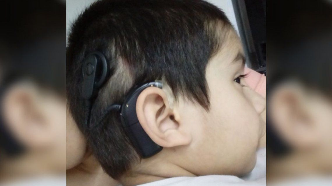 Tiene 4 años, es hipoacúsico y necesita ayuda para comprar un audífono