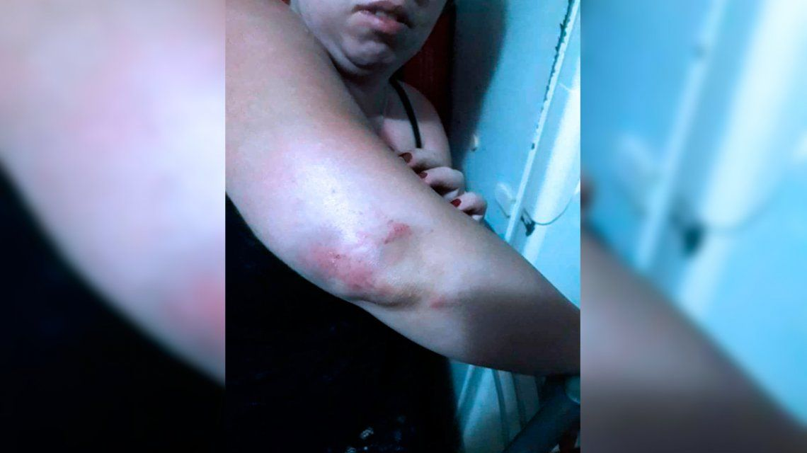 Ana María denunció a su ex por violencia de género