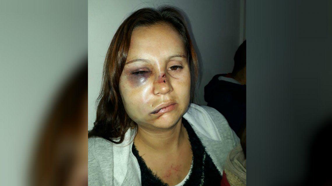 Le desfiguró la cara a golpes con su bebé en brazos: Iba a matarme