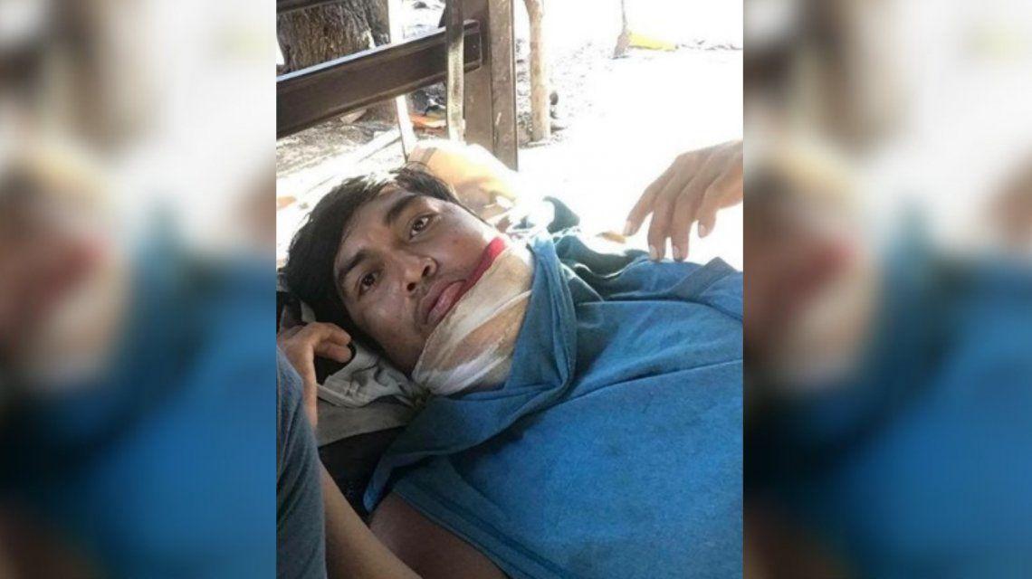 La lucha de Avelino: tiene cáncer de mandíbula y pelea por su vida en el monte salteño