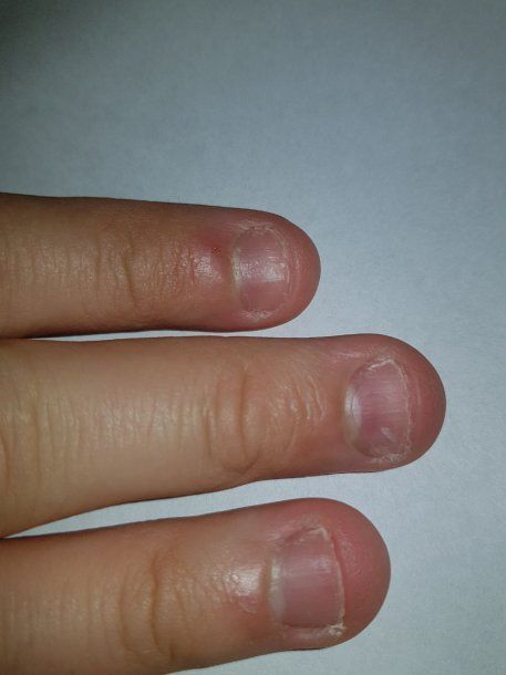 Onicofagia El Hábito De Comerse Las Uñas Que Puede Ser