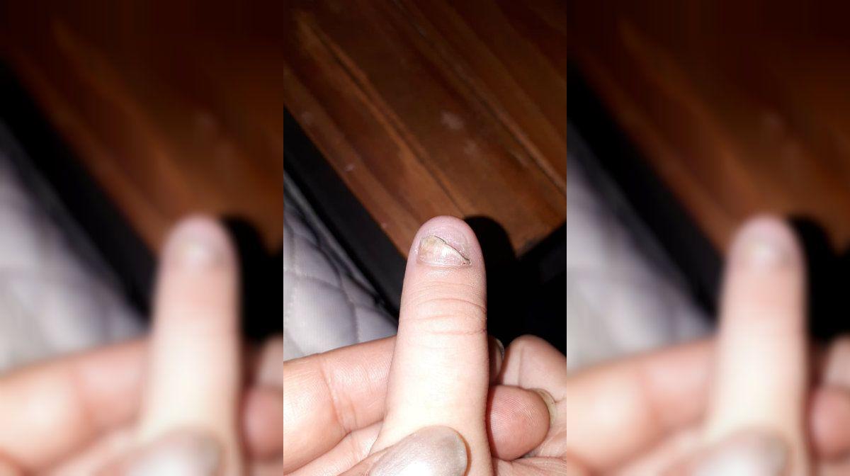 La paciente de 12 años que se comió el pulgar