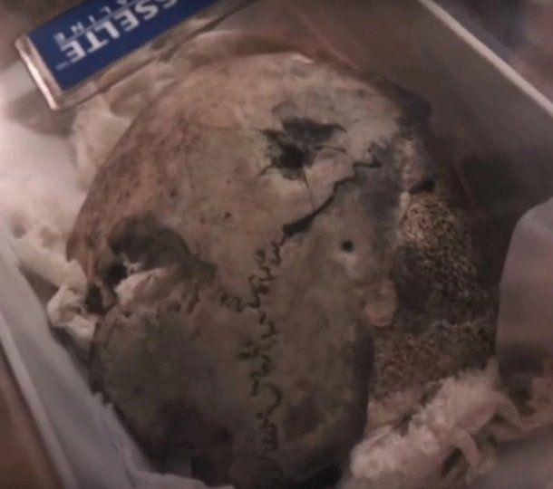 Muestra del cráneo de Hitler - Crédito: (© Dailymotion/ Infrarouge, France 2)