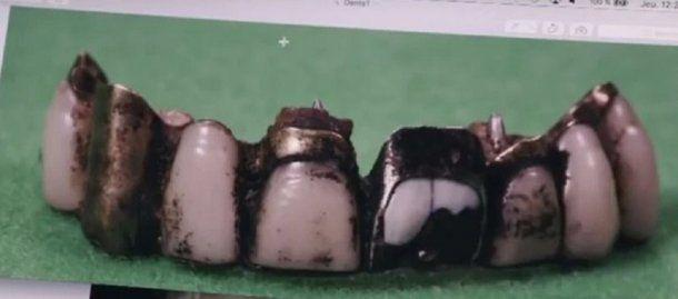 Fragmento de la dentadura de Hitler - Crédito: (© Dailymotion/ Infrarouge, France 2)
