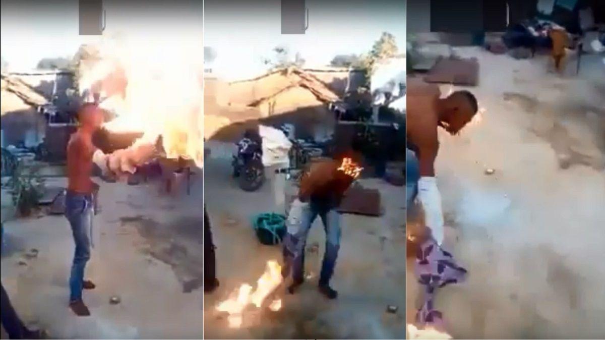 VIDEO: Quiso hacer un truco con fuego y se quemó la cara