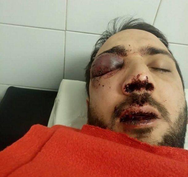 Patovicas lo desfiguraron y podría perder un ojo.