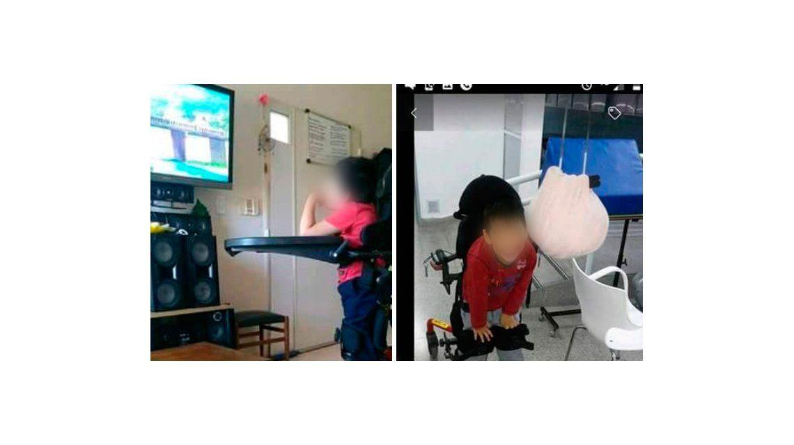 Una mamá ofrece $ 8 mil para recuperar una prótesis que le robaron a su hijo