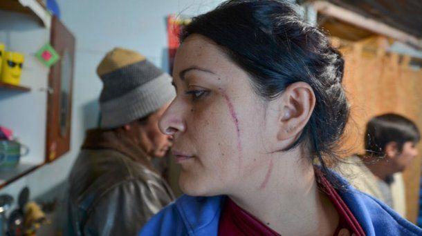 Pelea entre vecinos de Neuquén - Crédito: Omar Novoa/lmneuquen