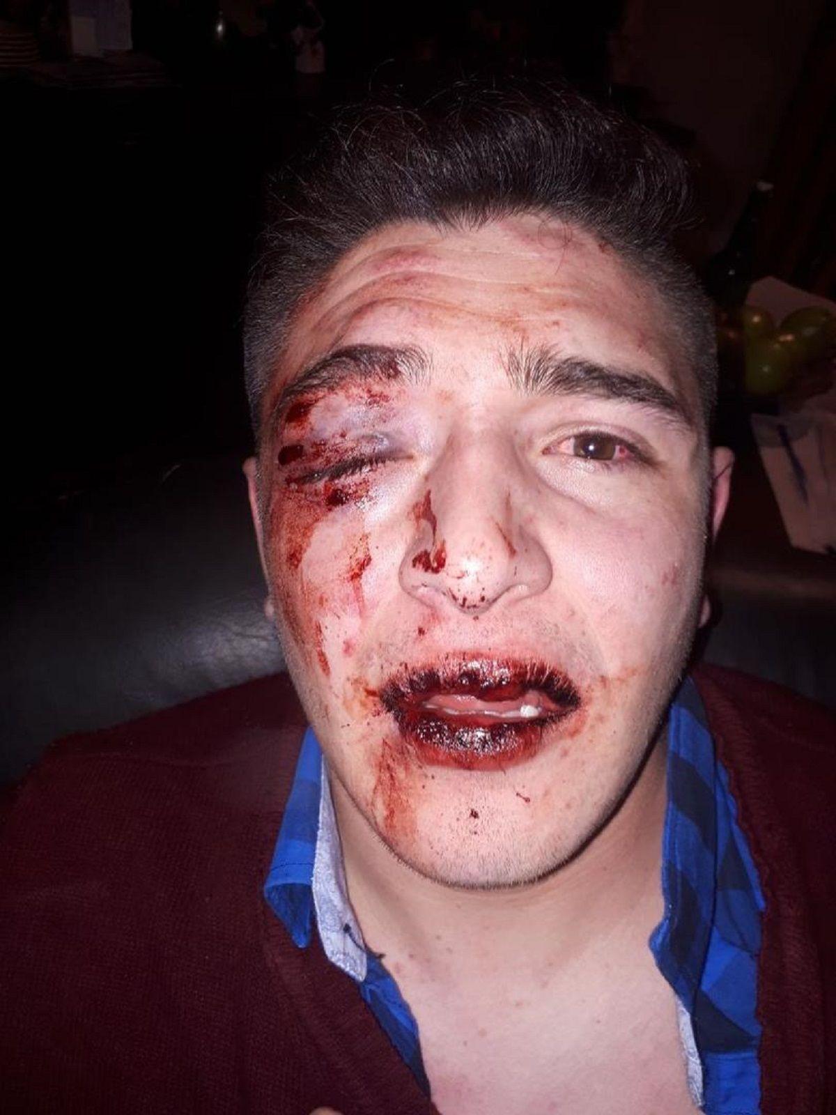 Le dieron una golpiza en un boliche de Tucumán