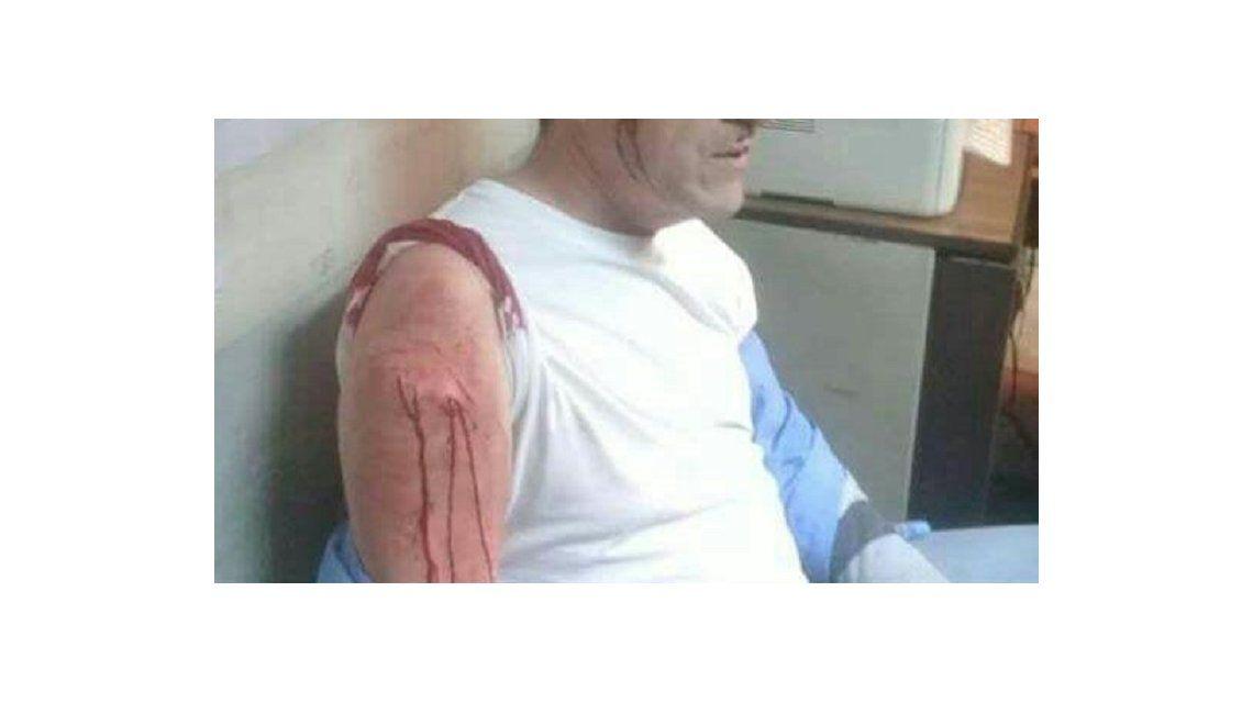 La fuerte imagen del chofer agredido se viralizó en las redes sociales