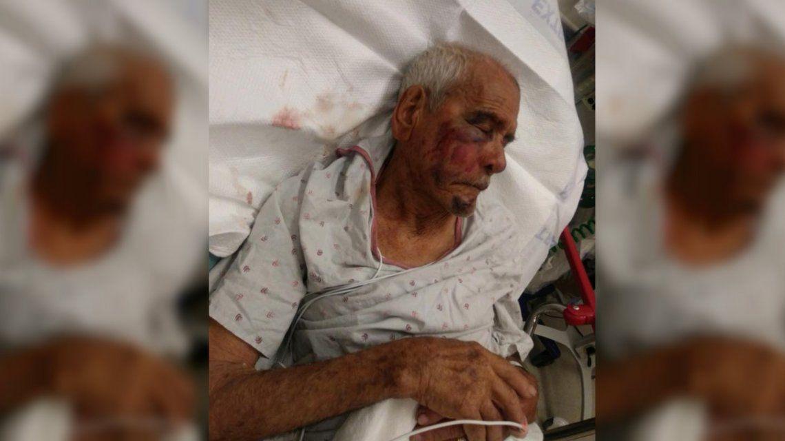 Una mujer golpeó a un mexicano de 91 años con un ladrillo: Volvete a tu país
