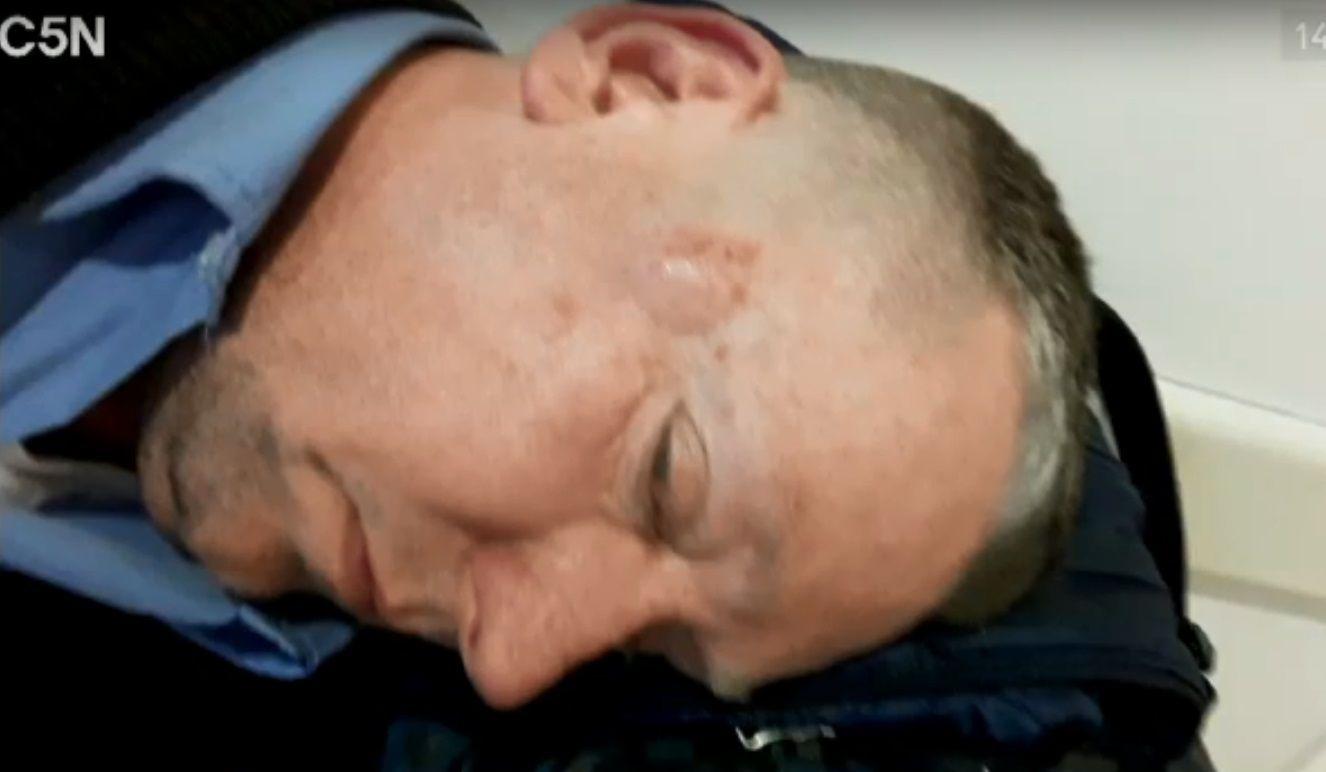 Otro ataque a un colectivero: lo golpearon con una manopla y estuvo una hora inconsciente