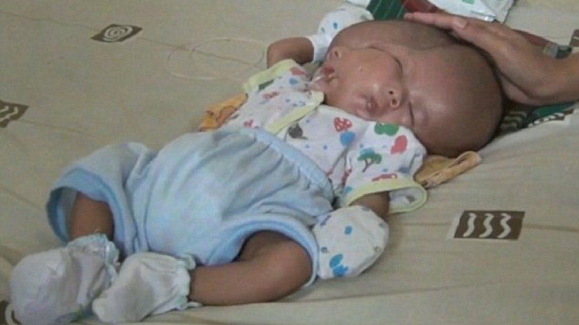 Un bebé nació con dos cabezas en Indonesia