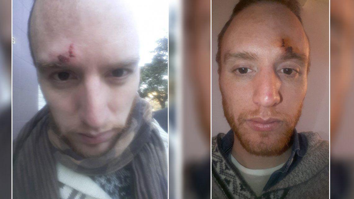 La Plata: brutal agresión a un hombre por ser gay
