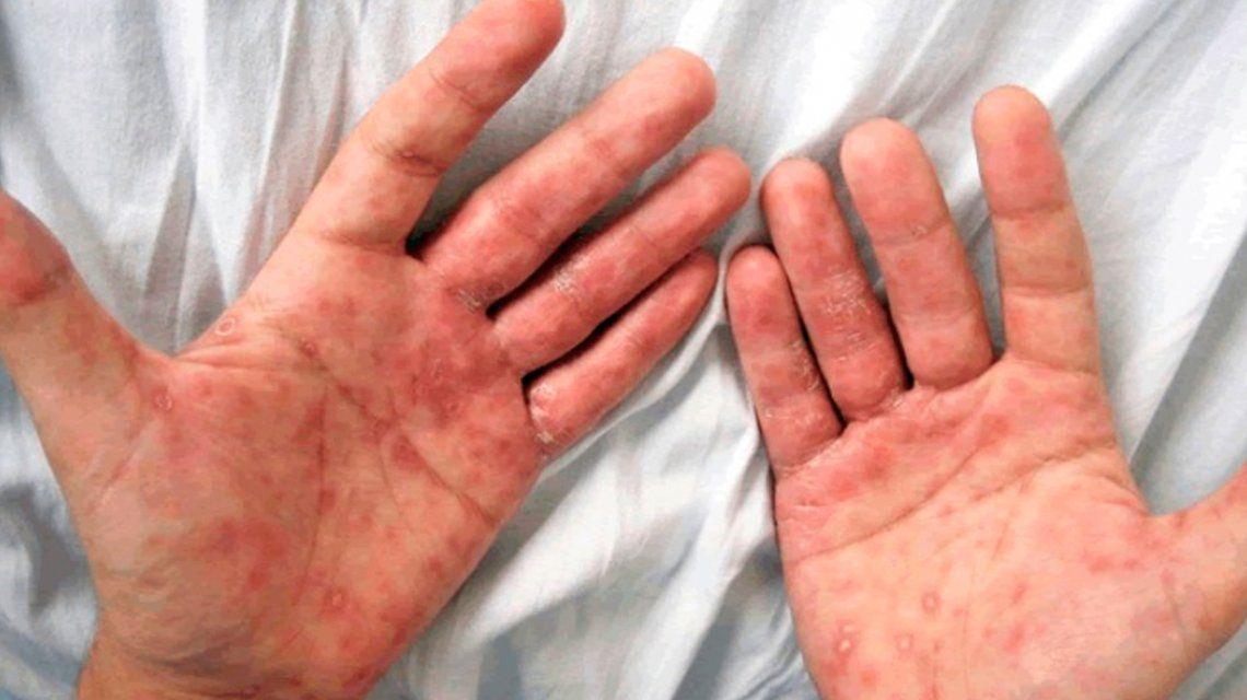 Preocupación en la comunidad médica por el aumento de sífilis