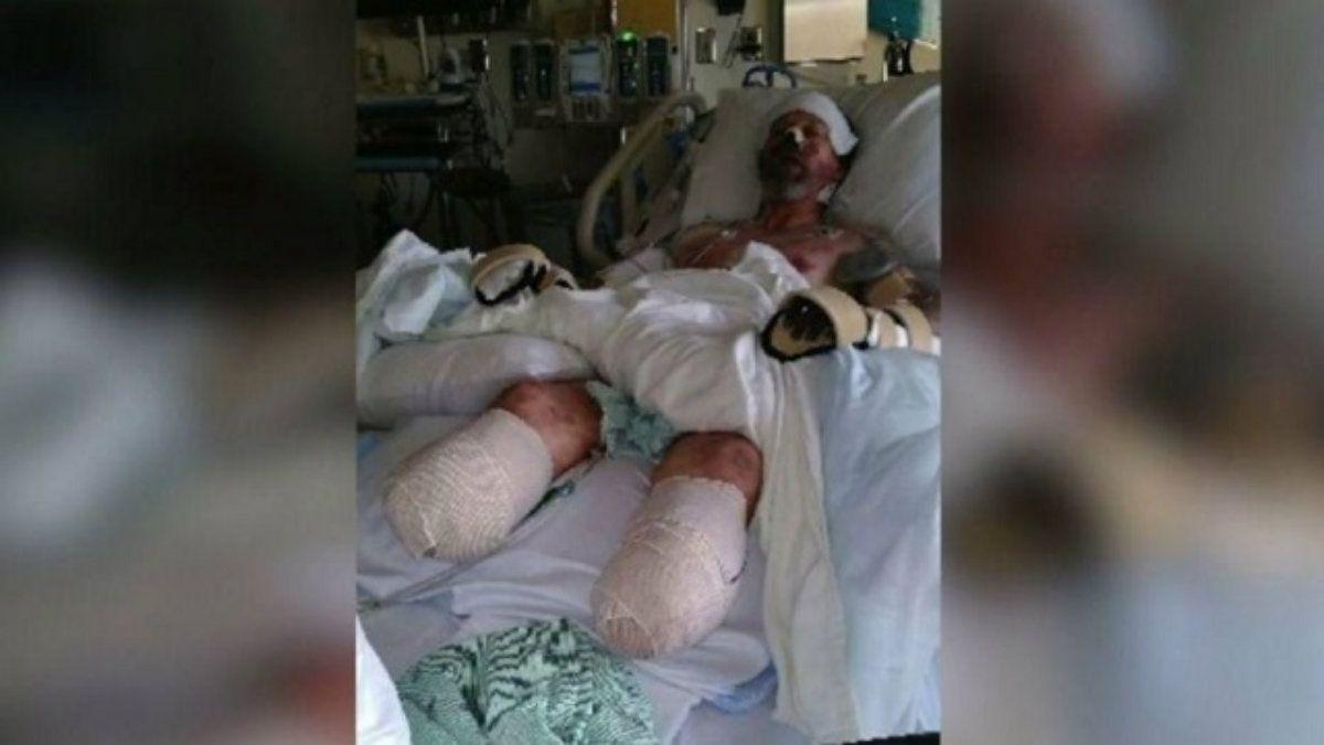 Manteufel perdió sus piernas y brazos por una infección en la sangre transmitida por su perro