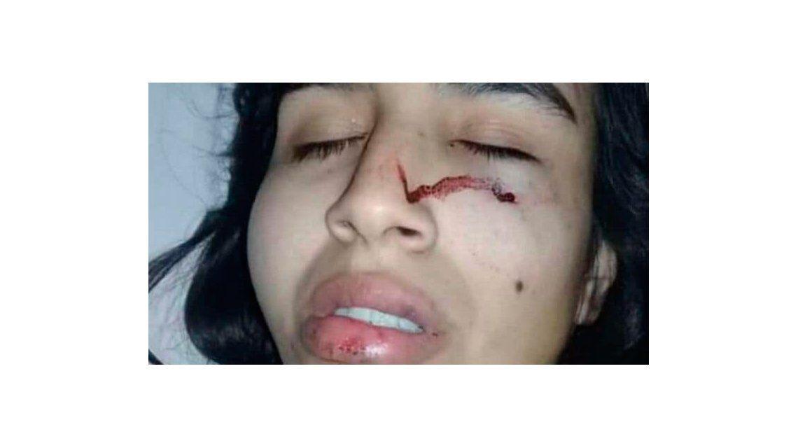 La joven tiene 19 años y el ataque fue cuando ella decidió terminar la relación