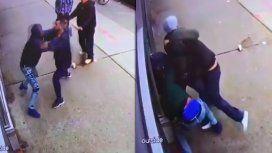 Brutal: Jared Gordon se peleó en plena calle y casi pierde tres dedos