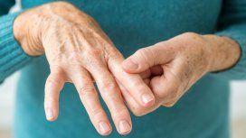La Anmat prohibió unas cápsulas para paliar los síntomas de la artritis