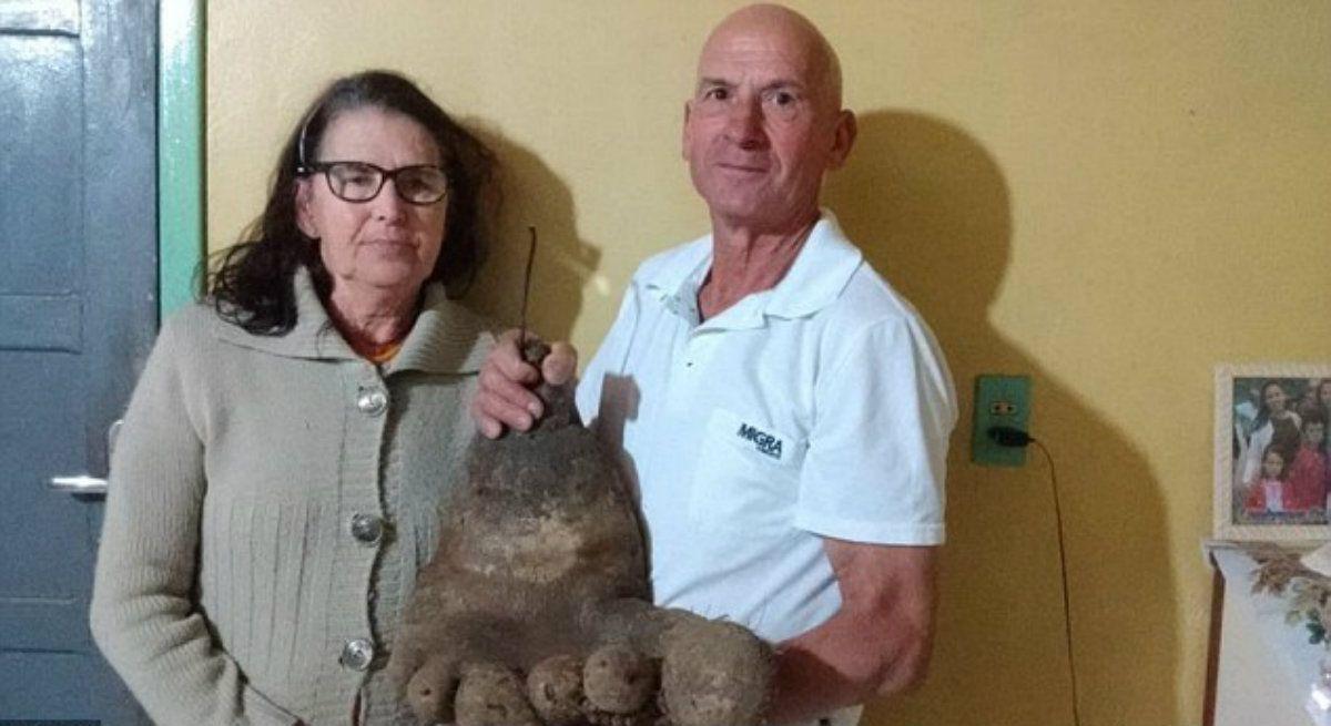 El extraño caso del pie de papa que tiene a una mujer perpleja en Brasil