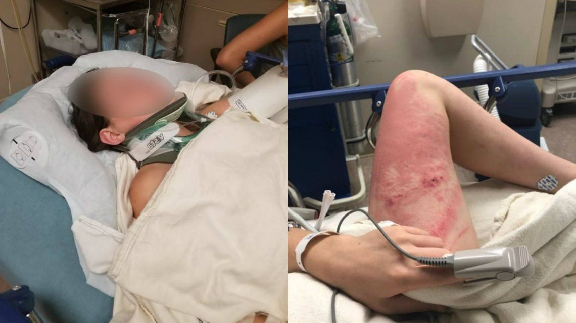 La adolescente tiene cinco costillas rotas y una lesión en el pulmón por el impacto contra el agua