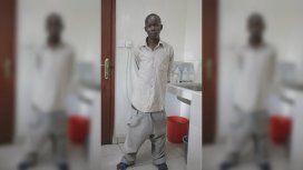 Horace Owiti Opiyo, de 20 años, ya no podía caminar siquiera por el peso de sus genitales