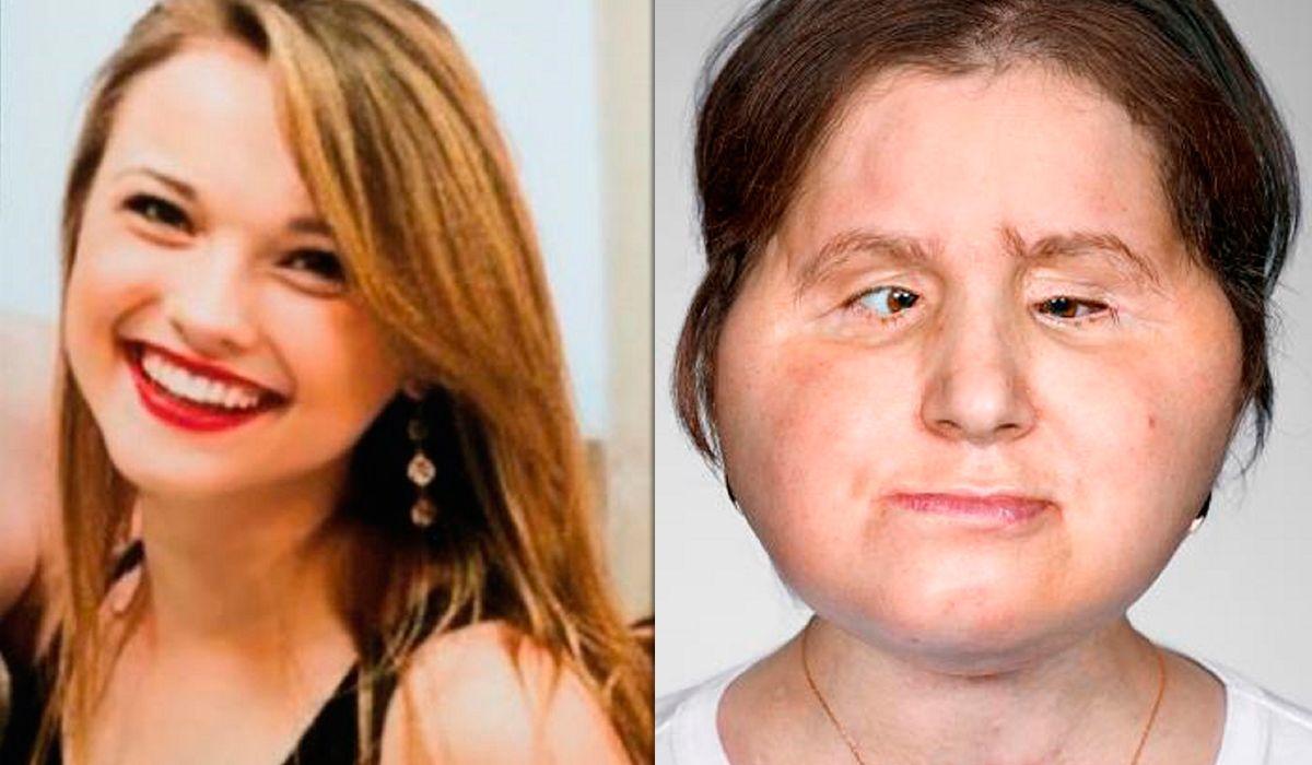 El antes y después de Katie