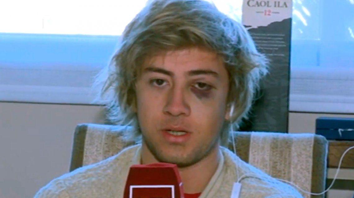 La Plata: un joven recibió una brutal golpiza de patovicas en un boliche