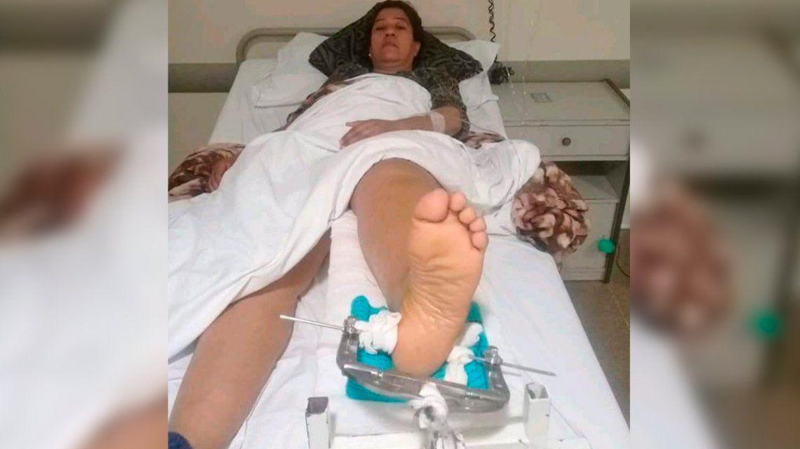 La mujer está internada con una fractura en la pierna izquierda