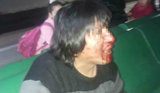 La mujer se defendió del abusador en el tren Roca