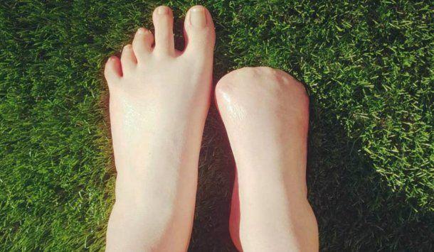 Los médicos tardaron siete años en amputar los dedos de Victoria