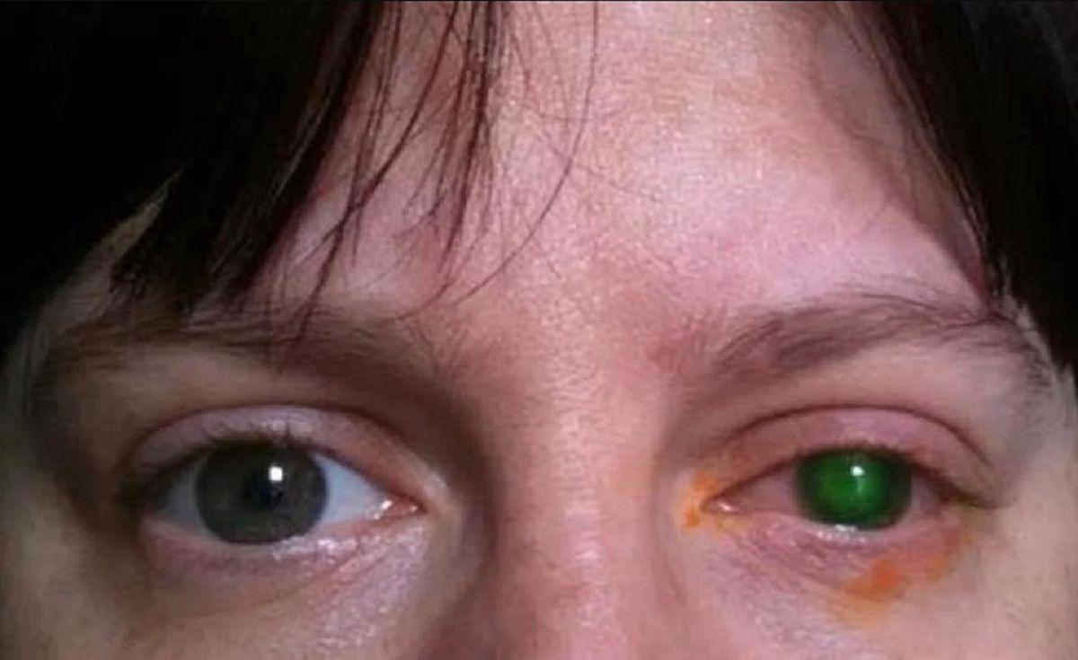 Se metió a la pileta con lentes de contacto y casi queda ciega