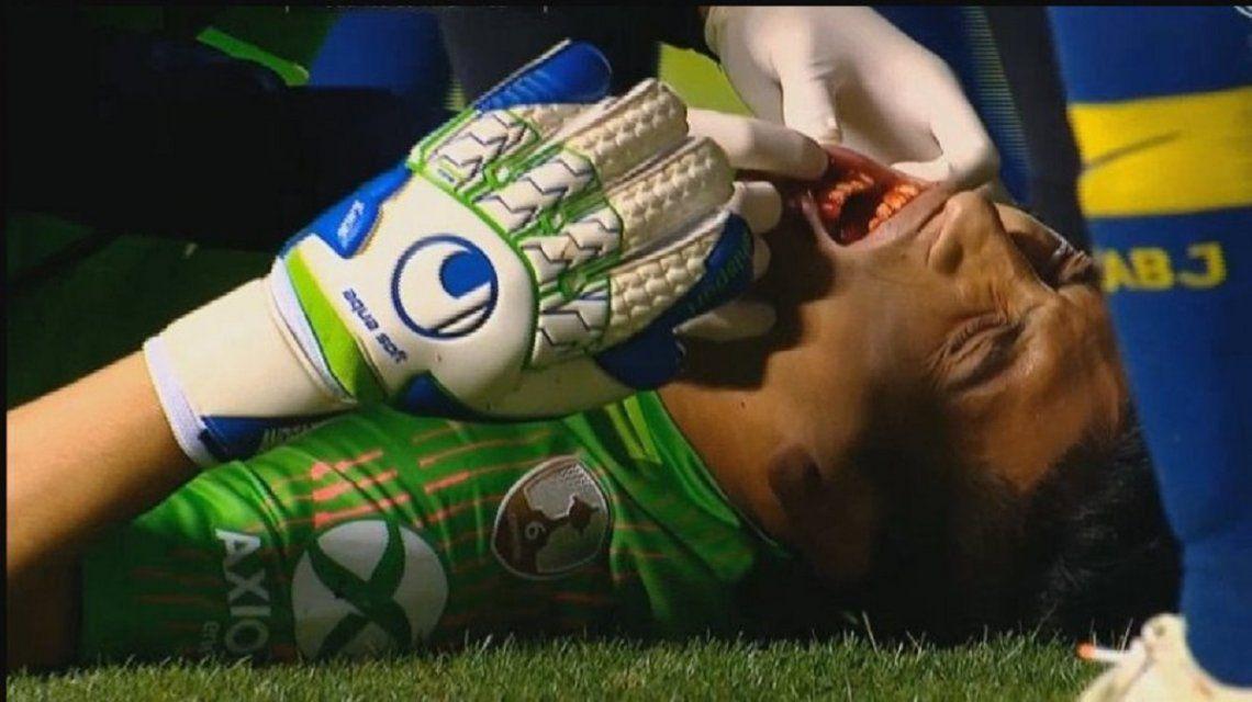 Esteban Andrada sufrió un fuerte golpe en su rostro