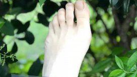 Nuestro pie izquierdo en elDía Mundial de la Parálisis Cerebral