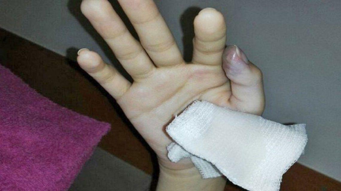 Fue a la guardia por un cuadro gripal y casi le tienen que amputar un dedo