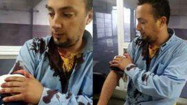 Otro ataque a un colectivero: lo apuñalaron con una trincheta en Moreno
